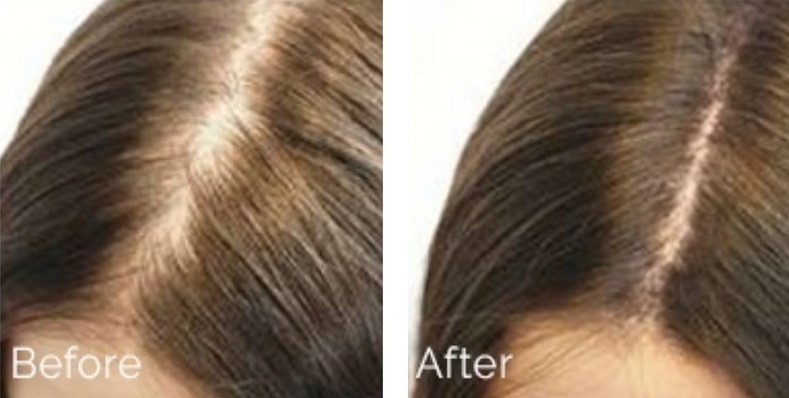 After and Before hair loss treatment